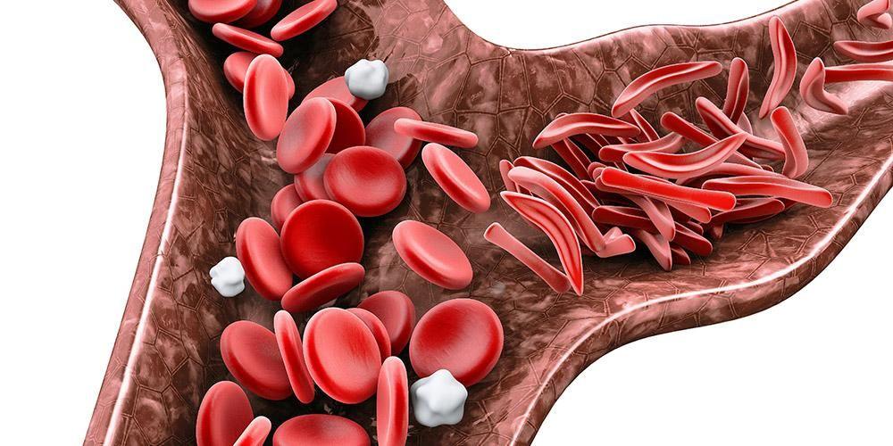Jenis – jenis Anemia